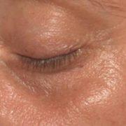 Venstre øje før microneedling behandling