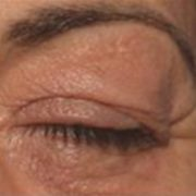 Venstre øje med hængelåg før microneedling behandling