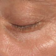 Venstre øje efter microneedling behandling