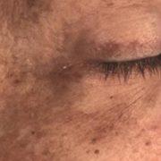 Højre øje efter microneedling behandling