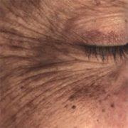 Højre øje før microneedling behandling